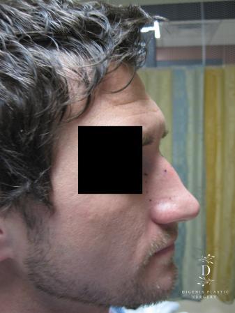 Rhinoplasty: Patient 10 - Before Image 3