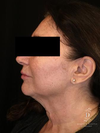 Facelift: Patient 4 - Before and After Image 4