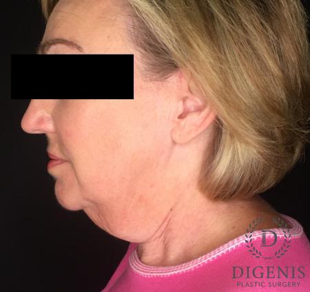 Facelift: Patient 2 - Before Image 3