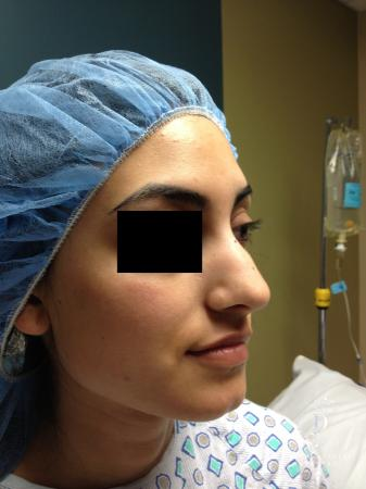 Rhinoplasty: Patient 7 - Before Image 2