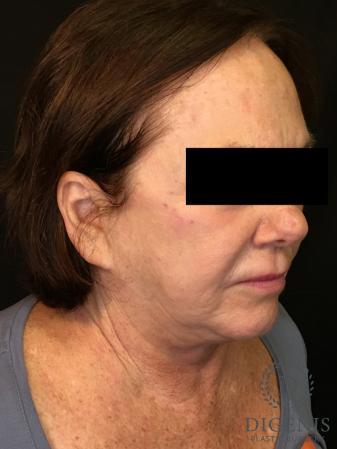 Facelift: Patient 13 - Before Image 2