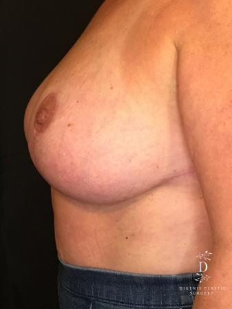 Breast Lift With Implants: Patient 4 - After Image 4