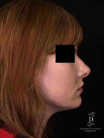 Rhinoplasty: Patient 2 - After Image 3