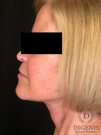 Facelift: Patient 1 - After Image 5