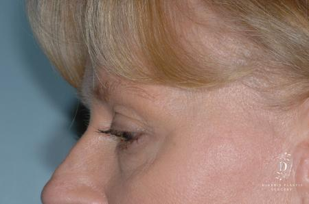 Eyelid Surgery: Patient 7 - Before and After Image 4