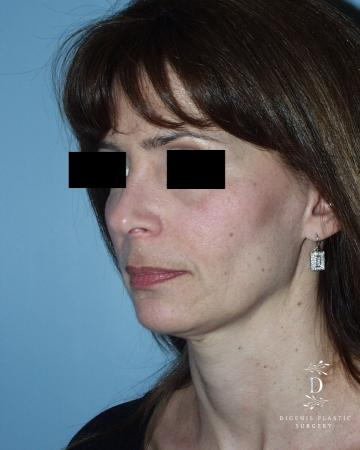 Rhinoplasty: Patient 5 - After Image 4