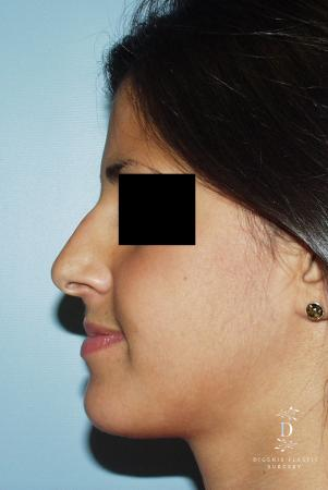 Rhinoplasty: Patient 8 - Before and After Image 4