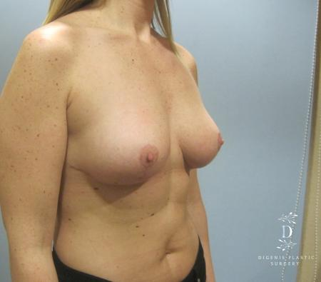 Breast Lift: Patient 7 - After Image 2