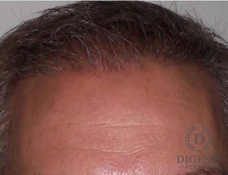 NeoGraft Hair Restoration: Patient 1 - After Image