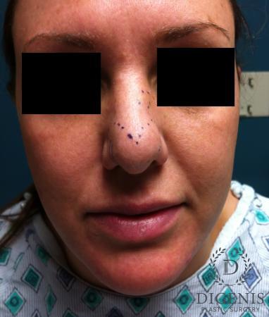 Rhinoplasty: Patient 1 - Before Image