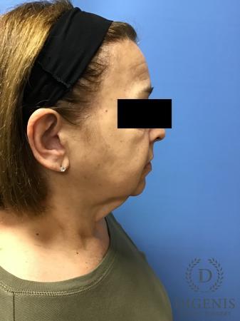 Facelift: Patient 7 - Before Image 3