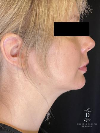 Injectables: Patient 3 - After Image 1