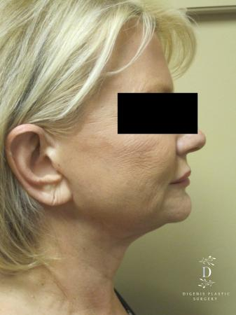 Facelift: Patient 14 - Before Image 3