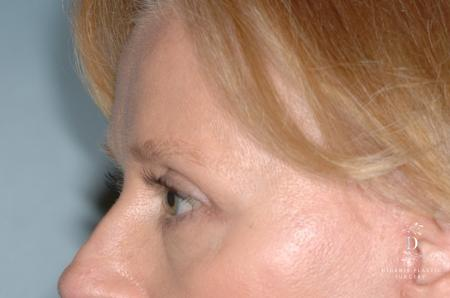 Eyelid Surgery: Patient 7 - After Image 4