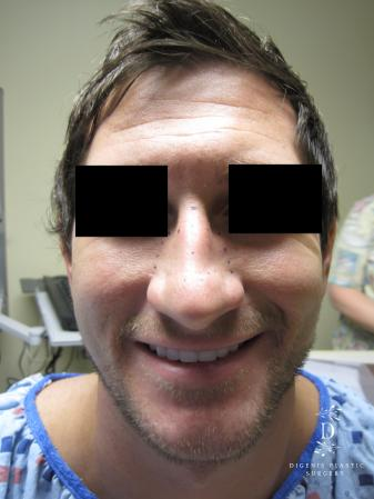 Rhinoplasty: Patient 10 - Before Image