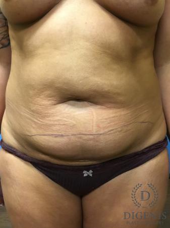 Abdominoplasty: Patient 1 - Before Image 1