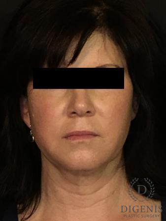 Digenis Refresh Lift: Patient 4 - Before Image 1