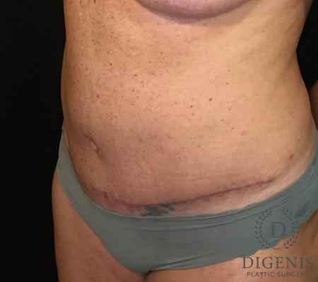 Abdominoplasty: Patient 3 - After Image 4