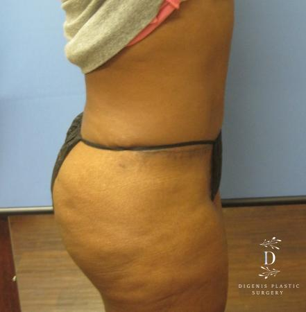 Abdominoplasty: Patient 4 - After Image 3