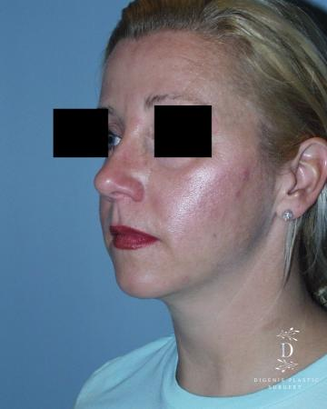 Rhinoplasty: Patient 3 - After Image 4