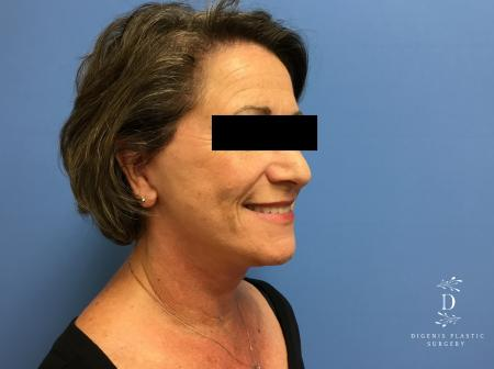 Facelift: Patient 15 - After Image 2