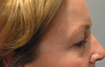 Eyelid Surgery: Patient 8 - Before Image 2