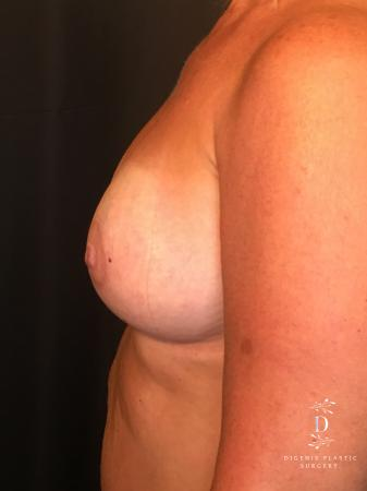 Breast Lift With Implants: Patient 8 - After Image 5