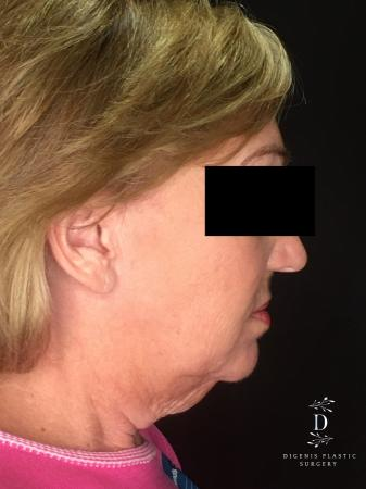Facelift: Patient 2 - Before and After Image 5