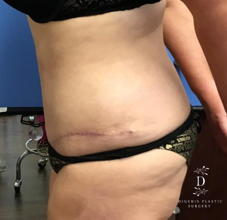 Abdominoplasty: Patient 5 - After Image 5
