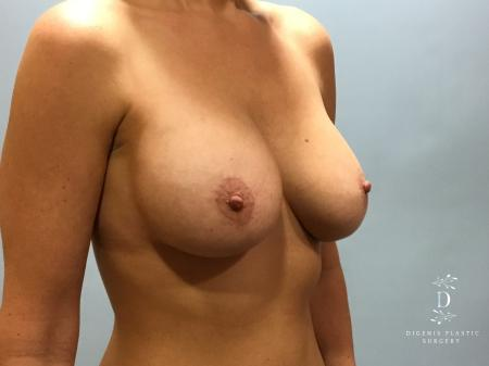 Breast Lift With Implants: Patient 5 - After Image 2