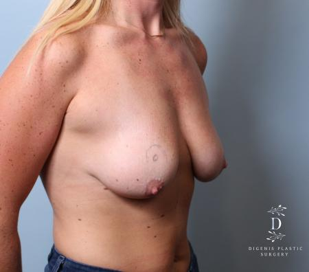 Breast Lift: Patient 7 - Before Image 2