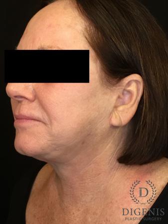 Facelift: Patient 13 - After Image 4