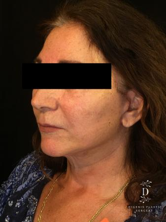 Facelift: Patient 4 - After Image 3