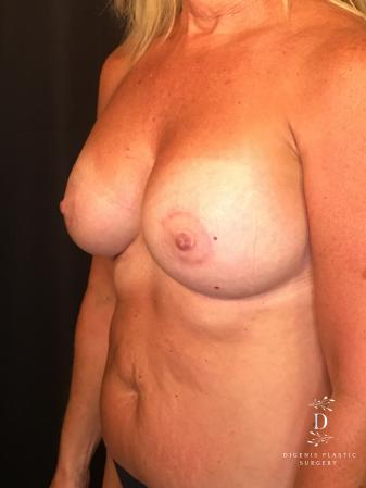 Breast Lift With Implants: Patient 8 - After Image 4