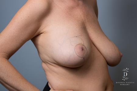 Breast Lift: Patient 6 - Before Image 2