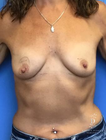 Breast Lift With Implants: Patient 3 - Before Image 1
