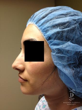 Rhinoplasty: Patient 7 - Before and After Image 5