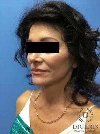 Facelift: Patient 9 - After Image 2