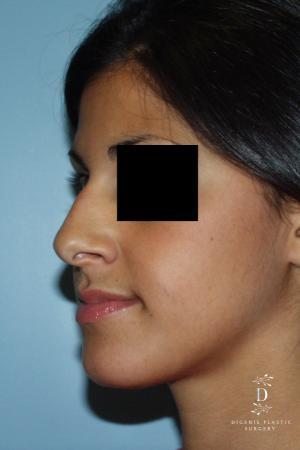 Rhinoplasty: Patient 8 - Before Image 3