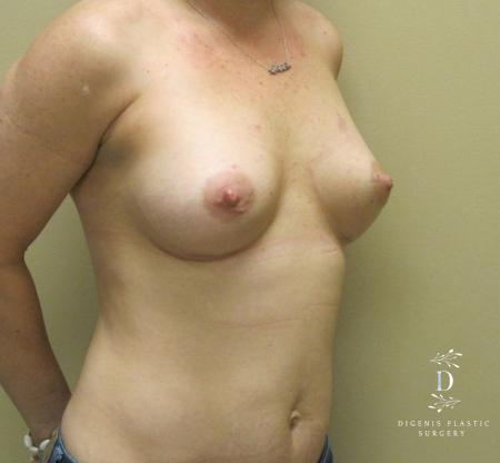 Breast Lift With Implants: Patient 1 - After Image 2