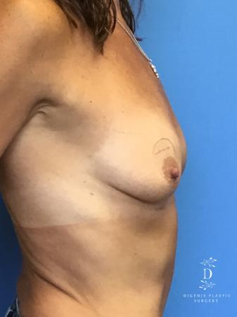 Breast Lift With Implants: Patient 3 - Before and After Image 5