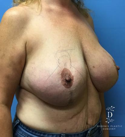 Breast Lift With Implants: Patient 4 - Before Image 2
