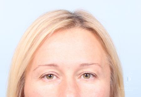 Eyelid Surgery: Patient 9 - Before Image