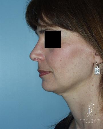 Rhinoplasty: Patient 5 - After Image 5