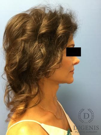 Facelift: Patient 9 - After Image 5