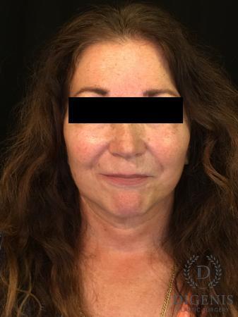 Facelift: Patient 4 - After Image