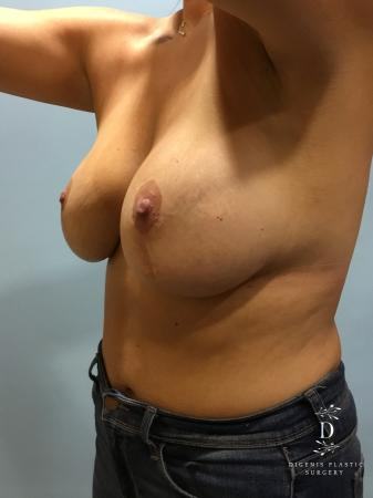 Breast Lift With Implants: Patient 2 - Before Image 2