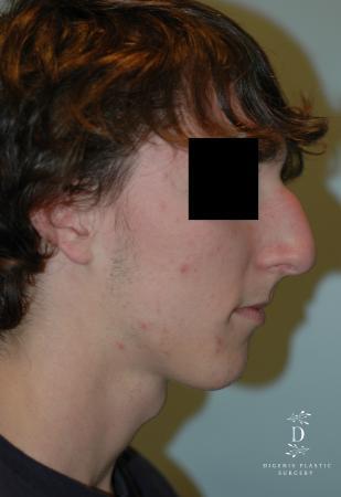 Rhinoplasty: Patient 9 - Before Image 3