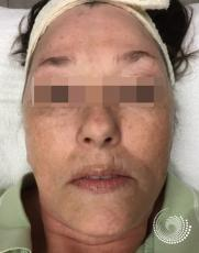 Chemical Peels: Patient 4 - Before Image
