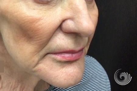 Sculptra Aesthetic: Patient 1 - Before Image